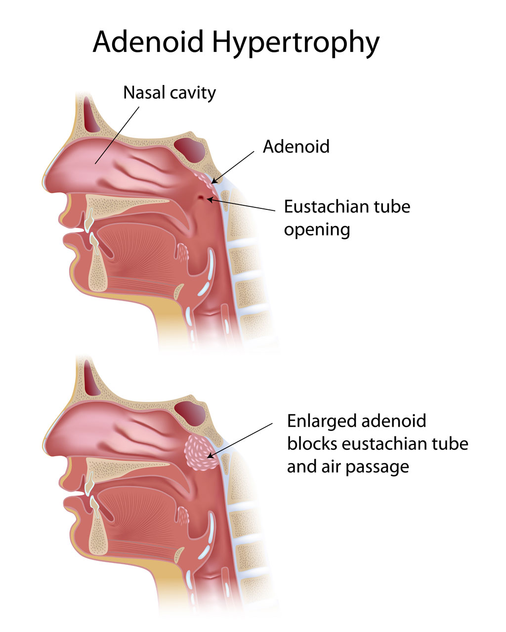 Tonsillectomy and Adenoidectomy (T&A) - FORT WORTH ENT