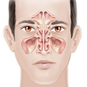 sinus disease - sinusitis