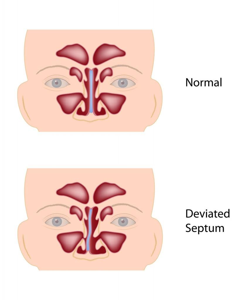 deviated-septum