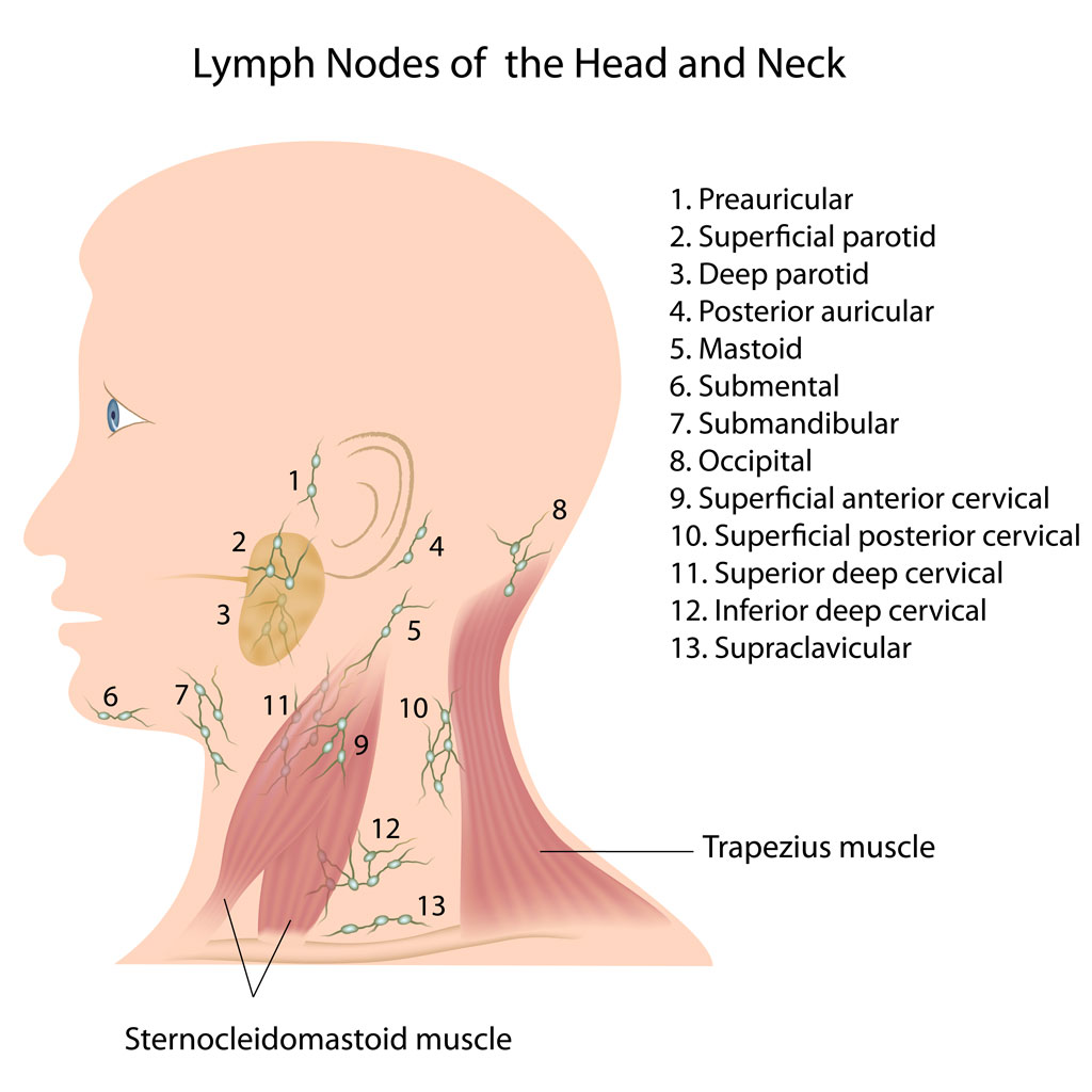 Neck Dissection of lymph nodes in the neck