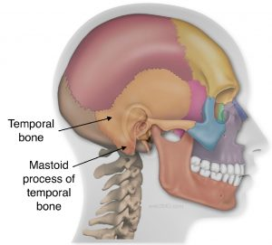 Tympanoplasty and mastoidectomy, tympanomastoidectomy,