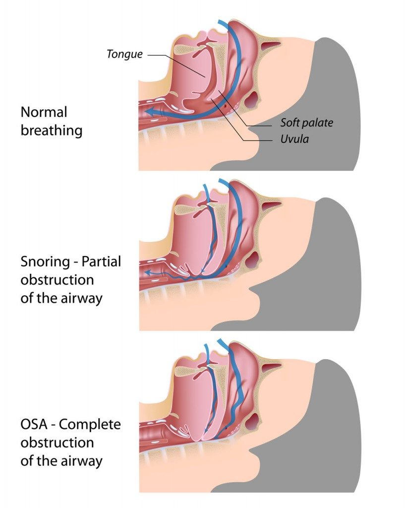 Nasal Obstruction snoring and obstructive sleep apnea
