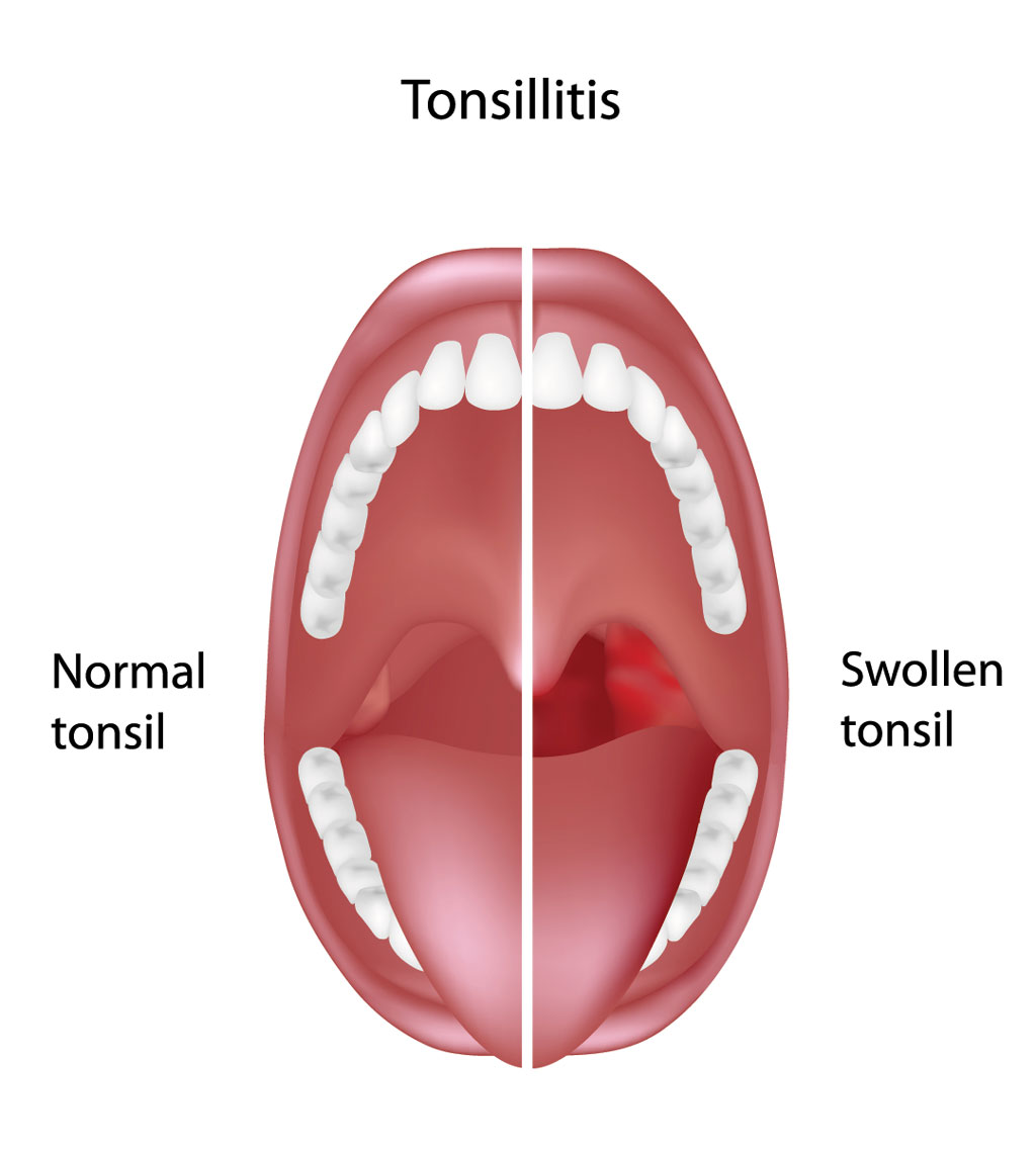 Tonsillectomy And Adenoidectomy Ta Fort Worth Ent Sinus
