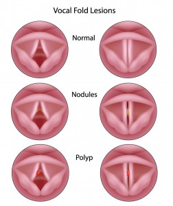 vocal-cord-nodules-and-polyps-