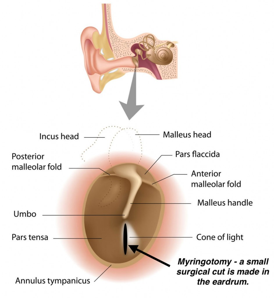 Office Tympanostomy Tube Placement, ear tube myringotomy