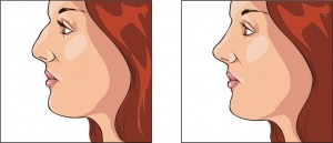 Rhinoplasty and nasal valve surgery