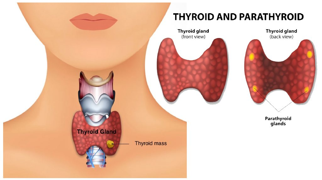 Fort Worth ENT treat Thyroid Disease and Thyroid nodules