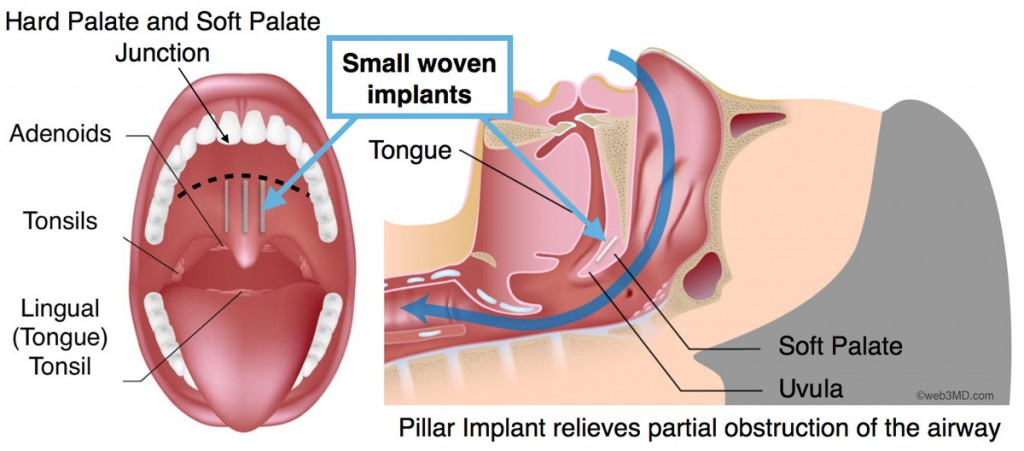 Snoring Pillar Procedure by Fort Worth ENT