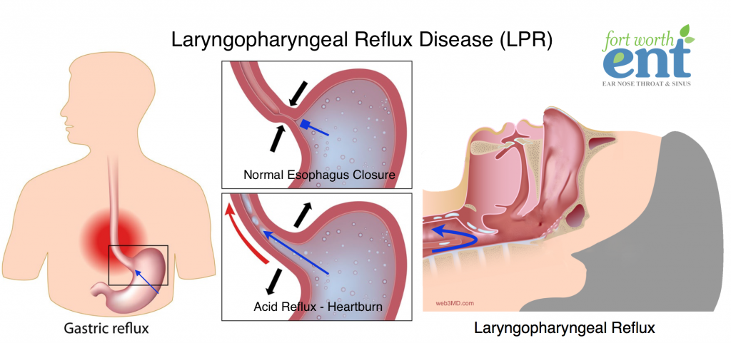 laryngopharyngeal reflux disease (lpr) fort worth ent
