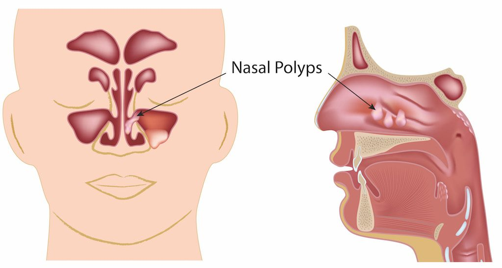 Nasal Obstruction due to Nasal polyps (benign growths within the nasal cavity)
