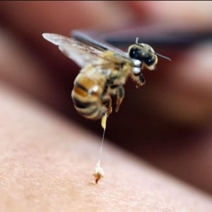 Insect Sting Allergy is Common