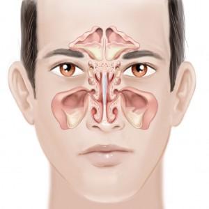 sinus disease - sinusitis