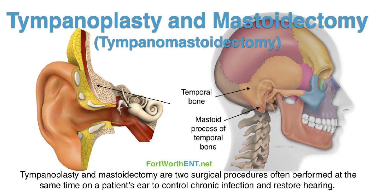 Tympanoplasty and Mastoidectomy (Tympanomastoidectomy)