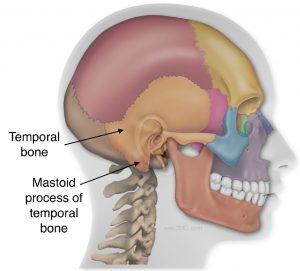 Tympanoplasty and mastoidectomy, tympanomastoidectomy,
