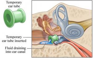 Myringotomy and Ear Tubes at Fort Worth ENT