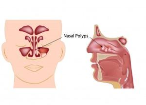 Nasal Polyp Surgery