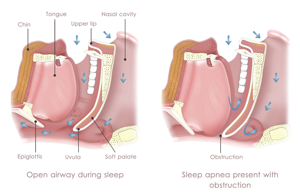 obstructive-sleep-apnea-anatomy