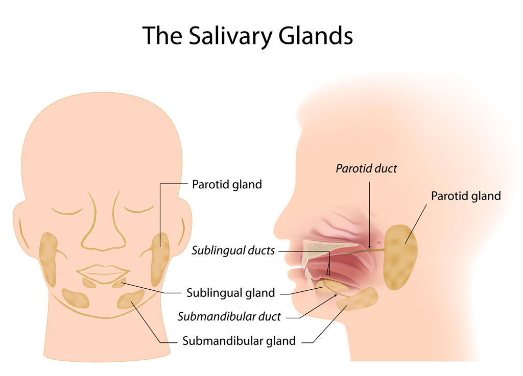 Parotidectomy of parotid glands and salivary glands