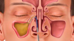 balloon sinuplasty treatment for allergy, asthma, sinusitis