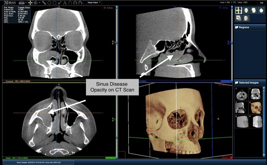 ct scan sinusitis