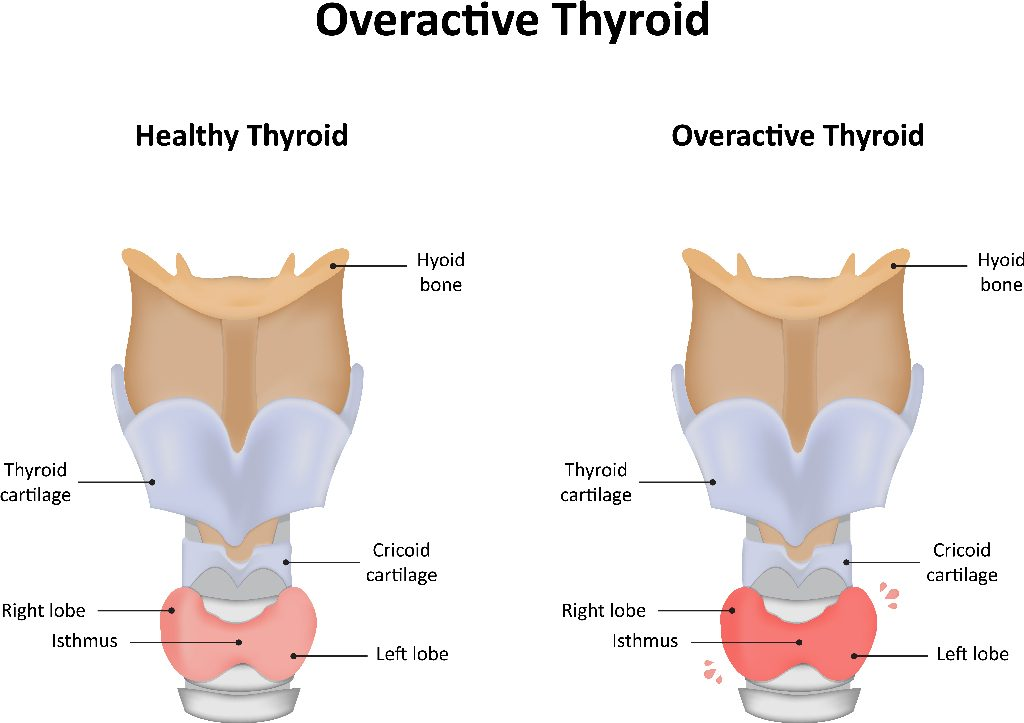Thyroid disease treated at Fort Worth ENT and Sinus